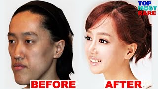 50 Korean Plastic Surgery Before and After Photos