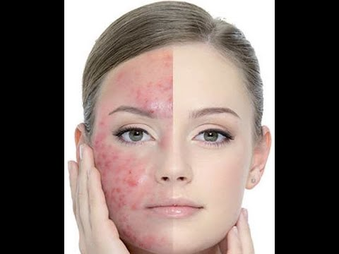 does acne go away after puberty , can you pop cystic acne , can you get acne on your vag
