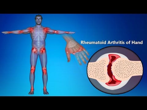 Rheumatoid Arthritis Of Hands: Symptoms, Signs, Treatment