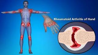 Rheumatoid Arthritis Of Hands: Symptoms, Signs, Treatment