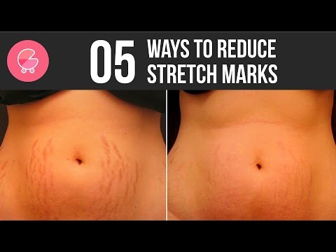 Stretch mark removal within few days | 5 home remedies for stretch marks to make them disappear fast