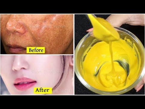 I'm SHOCKED it removed my Dark Spots in 3 Days Potato ice-cube for Skin Whitening