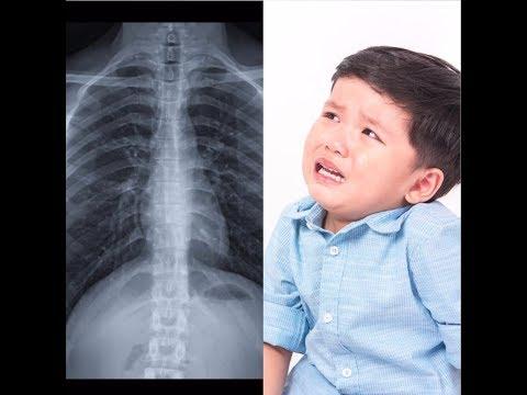 Chest Pains in Children
