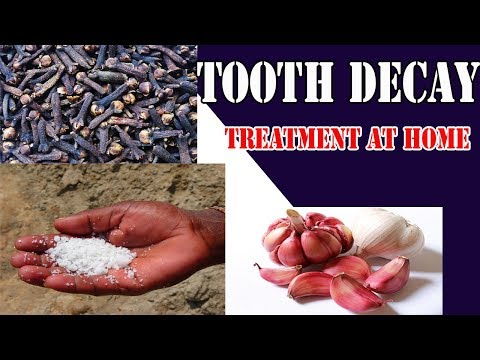 Tooth Decay Treatment at Home - Tooth Decay