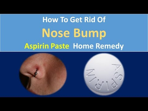 How to Get Rid Of Nose Bump | Aspirin Paste  Home Remedy