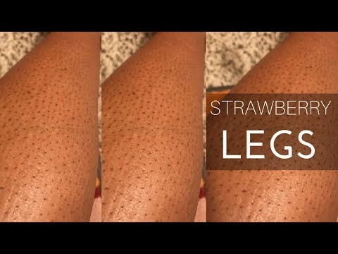 How to Get Rid of Strawberry Legs Fast: 4 Simple Steps