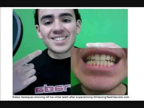 Teeth Whitening Secrets,  removes stains immediately