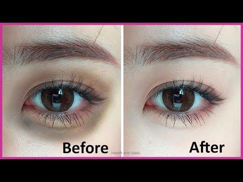 सिर्फ 15 मिनिट में आंखो के काले घेरे Dark Circles को गायब कर देगा | How to Remove Dark Circles