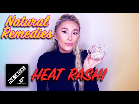 How To Get Rid Of Heat Rash | Natural Remedies