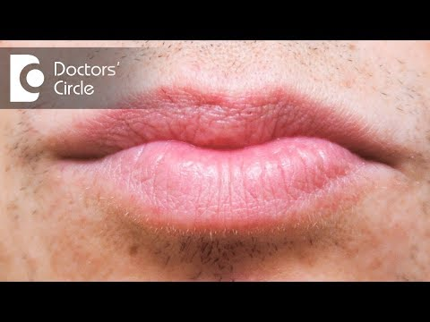 Treatment options for white spots in lips - Dr. Rasya Dixit