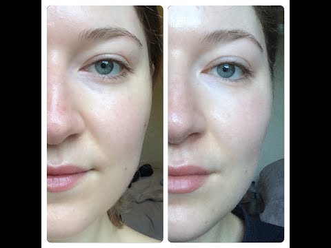 I used Volufiline for 30 days and here are the results | Before & After Photos