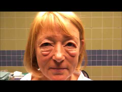 Baggy Eyes - Eyelid Surgery Specialist - Dr. Aral - LIDMED.de