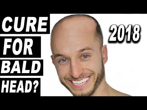 HAIR LOSS CURE IN 2018?