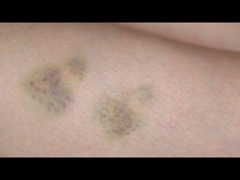 Bruise - SFX makeup Tutorial