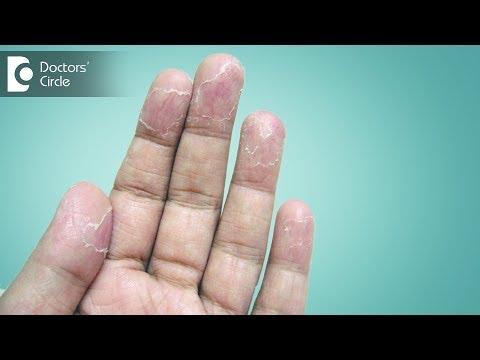 Ways to manage peeling of skin from hands - Dr. Sudheendra Udbalker