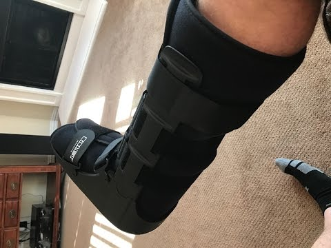 Ankle Recovery - Nerve Damage after Tibial Medial Malleolus Fracture from Motocross