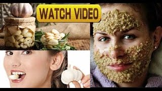 Garlic Face Mask For Acne,Blackhead,Anti-Ageing | Beauty & Health Benefits | Watch Till The End