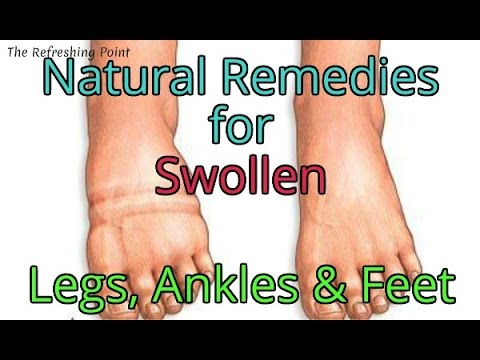 Age Old Home Remedies for Swollen Legs, Ankles and Feet - Natural Remedies for Redness & Irritation
