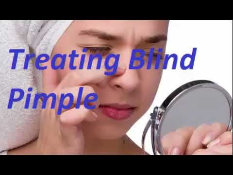 How to get rid of a blind pimple | Ways to Cure a Blind Pimple
