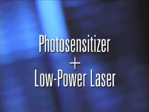Photodynamic Therapy to Treat Macular Degeneration - Eye Associates