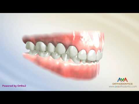 Deepbite Treatment by Cantilever Arch Wire - Orthodontic Treatment