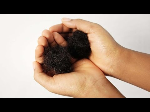 Hair Falling Out | How to Prevent Hair Loss