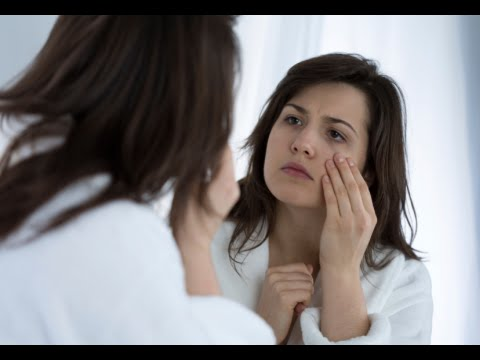 How to Cure Dark Circles Under Eyes Fast