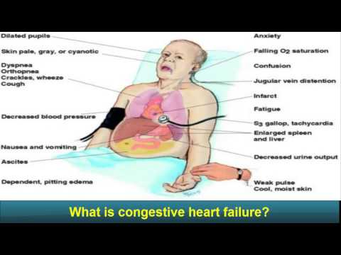 Congestive Heart Failure - congestive heart failure - Explained - MADE EASY end of life