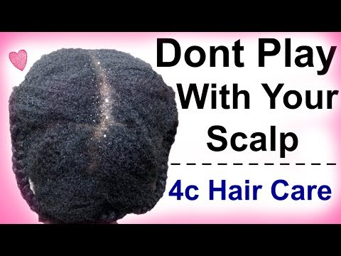 Product Buildup on Natural Hair | How to Get Rid of Buildup on Hair/Scalp