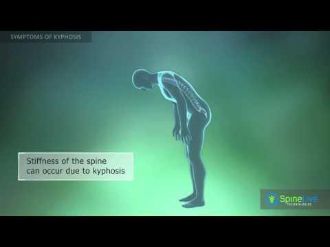Kyphosis Symptoms