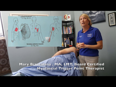 Serratus Anterior; Trigger Point Treatment for Chest or Upper Back Pain