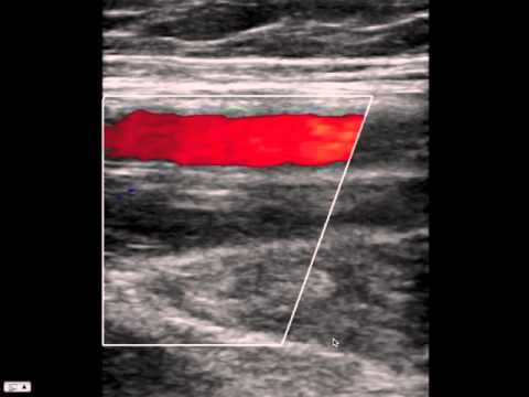 Blood Clot in Leg on Ultrasound