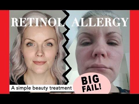 Allergic reaction BIG TIME!