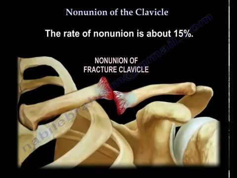 Nonunion Of The Clavicle - Everything You Need To Know - Dr. Nabil Ebraheim