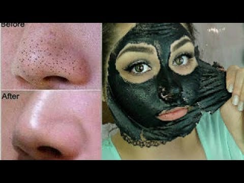 Home Remedies to Remove Blackheads and Whiteheads on nose