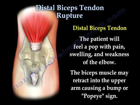 Distal Biceps Tendon Rupture - Everything You Need To Know - Dr. Nabil Ebraheim