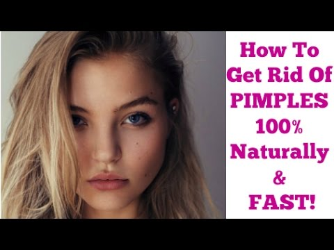 How to get rid of ACNE & PIMPLES 100% Naturally! For Clear Skin