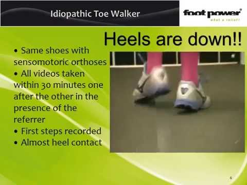 Idiopathic toewalker and orthotic treatment for toe walking