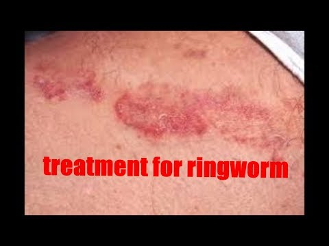 How to cure jock itch naturally fast overnight | Home Remedies for Tinea Cruris | ringworm treatment