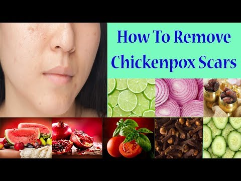How To Easily Remove Chickenpox Scars And Get Smoothy Skin