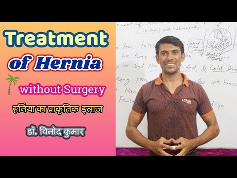 Treatment of Hernia without Surgery | Hindi