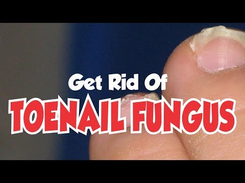 Home Remedies to Get Rid of Toenail Fungus [Fast And Easy]