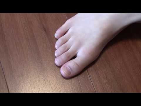 Finger Nail/Toenail Fungus Treatment: Free Home Remedy that's proven to work!