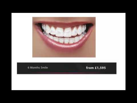 How Much Do Braces Cost in London