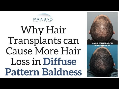 Why Hair Transplants can Cause More Hair Loss in Diffuse Hair Thinning, and Alternative Treatments