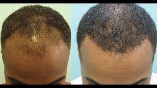 Nofap Hair Gain | lajoshrich com