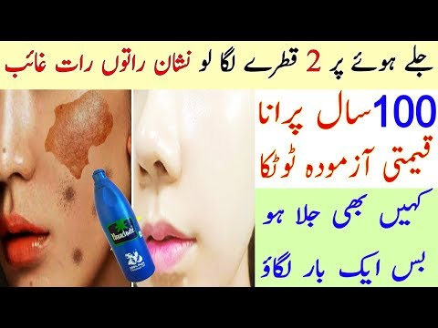 Apply in Night and Remove Burn Marks Permanently - Natural Cure Of Buns Scars - Skin Care Tips