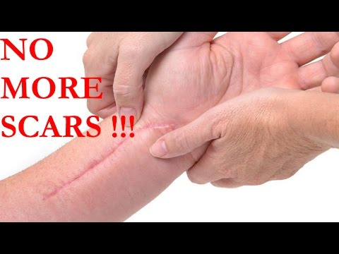 How to get rid of Scars Tissue | How to remove scars | natural home remedies