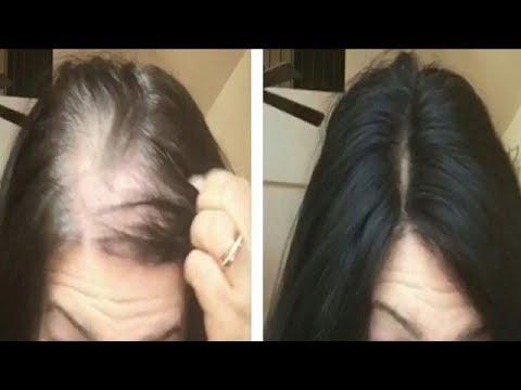 OMG SHOCKING~ Magic Hair Growth Serum - Reduce Hair fall