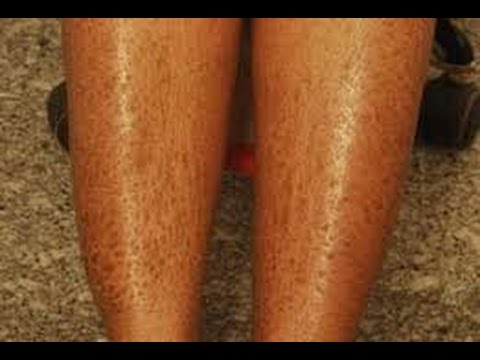 How to Heal Dry Skin on Legs